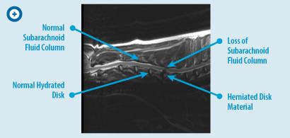 T2-Sagittal-Cervical-Spine